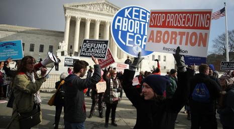 المجموعات المؤيدة للحياة تطالب المحكمة العليا الأمريكية بمنع تمويل عمليات الإجهاض